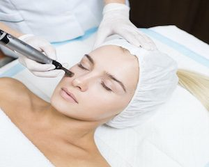 skin needling collagen therapy huntington beach cosmetic ink artistry